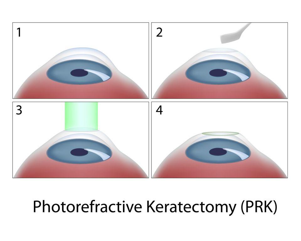 illustration of PRK