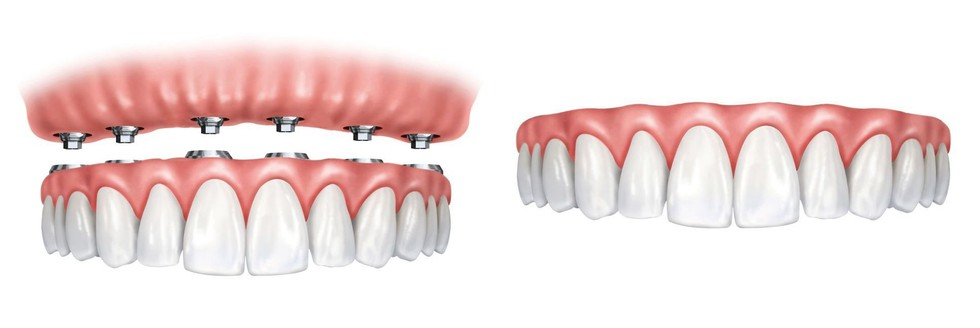 Side-by-side comparison of implant-supported dentures vs. traditional dentures.