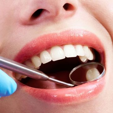 Close up of woman's teeth and dental exam mirror