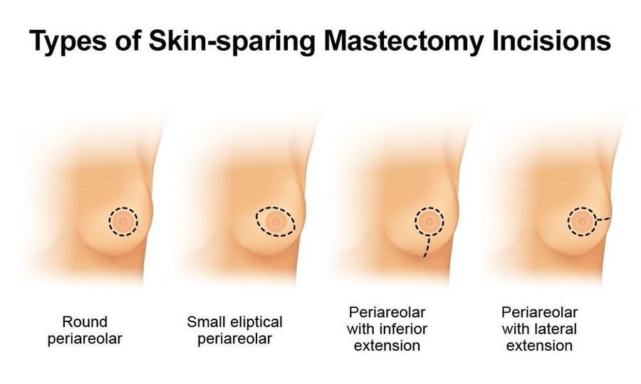 skin-sparing mastectomy incisions