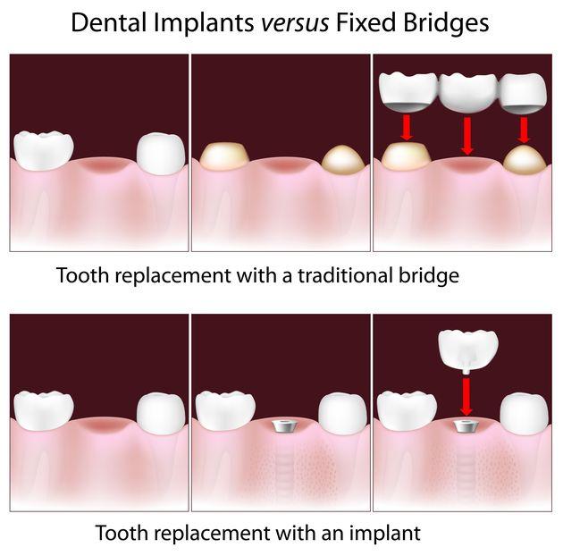 Implant-supported versus traditional bridge