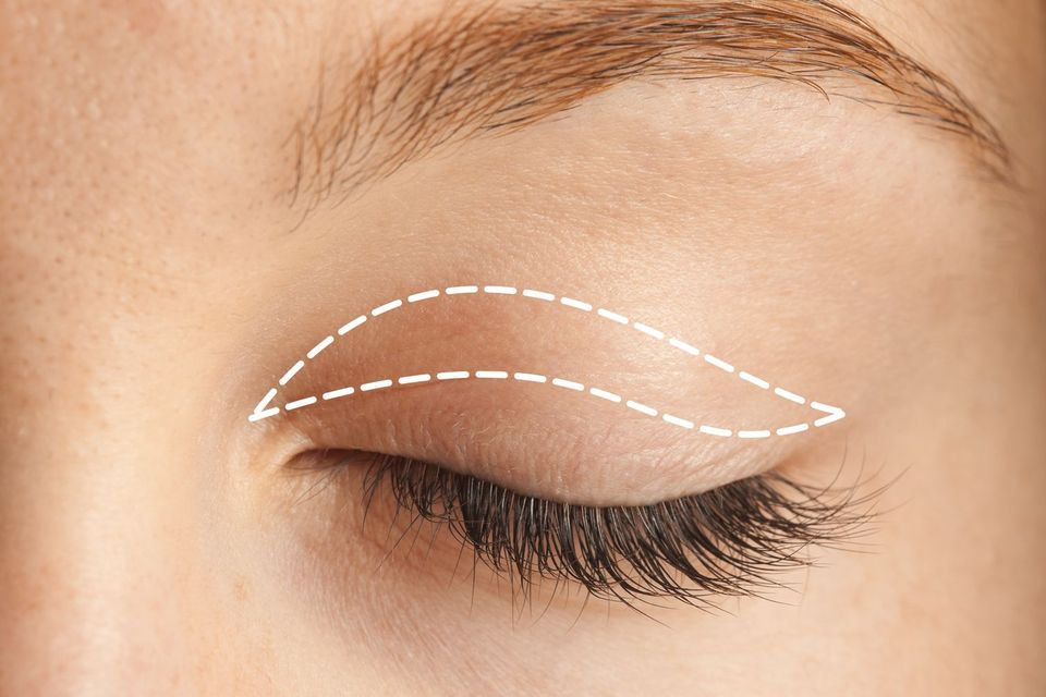 Upper eyelid with blepharoplasty lines drawn
