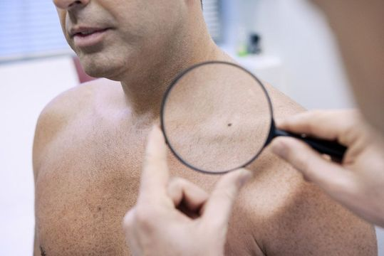 A doctor examines a dark spot on a man's shoulder with a magnifying glass