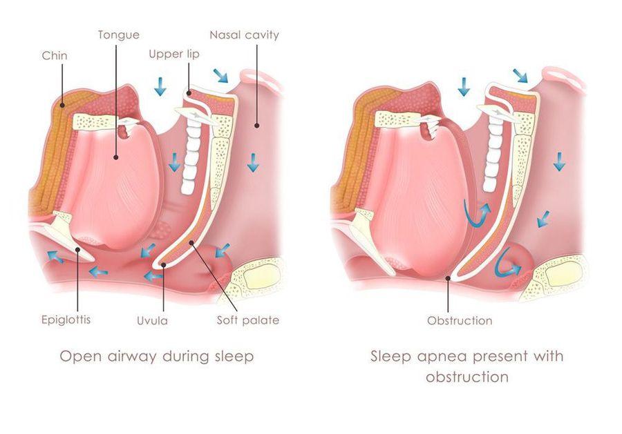 image of sleep apnea causes