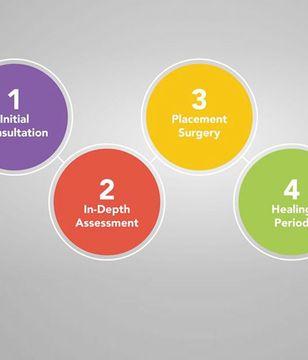Dental implant timeline diagram