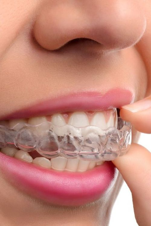 Photo of an invisalign tray being put in