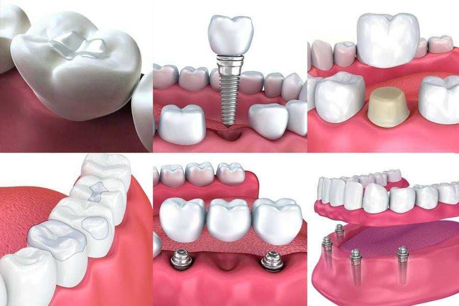 Various restorative dentistry procedures
