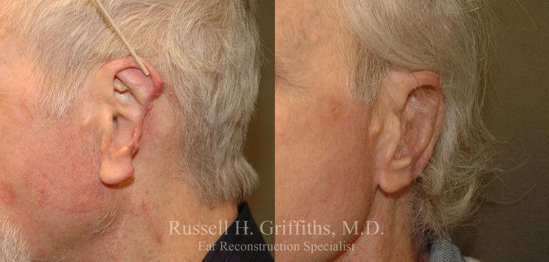 Before and after cancer reconstructive ear surgery
