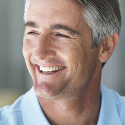 smiling man with a smile makeover