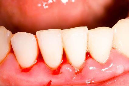 Receding gums.