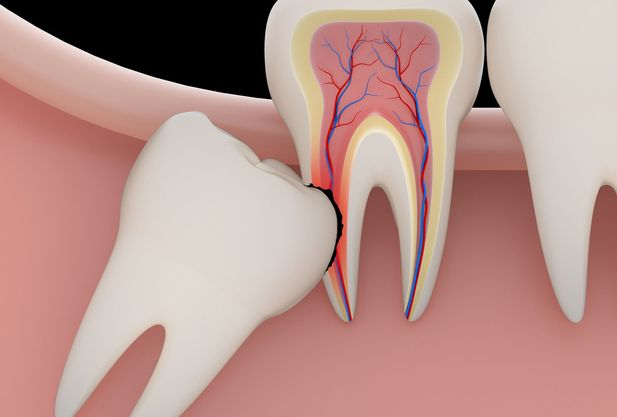Photo of a tooth growing into another tooth