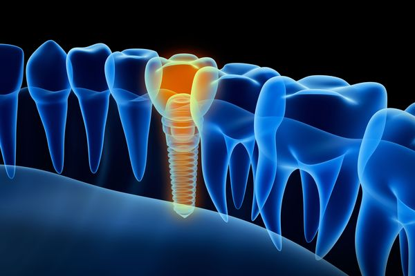 3-D illustration comparing dental implant to natural teeth.