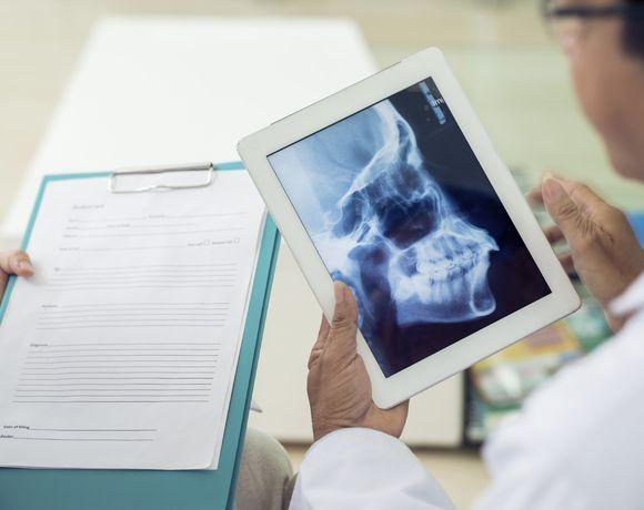 image of digital x-ray