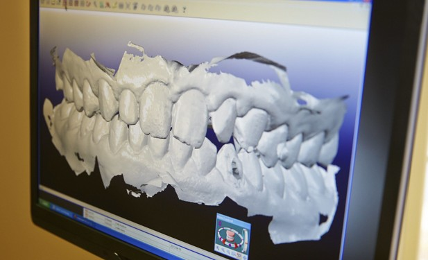A computer screen shows a digital image of a patient's teeth