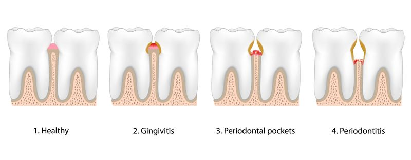 Illustration of the four steps of gum disease.
