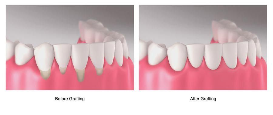 illustration of before and after soft tissue grafting