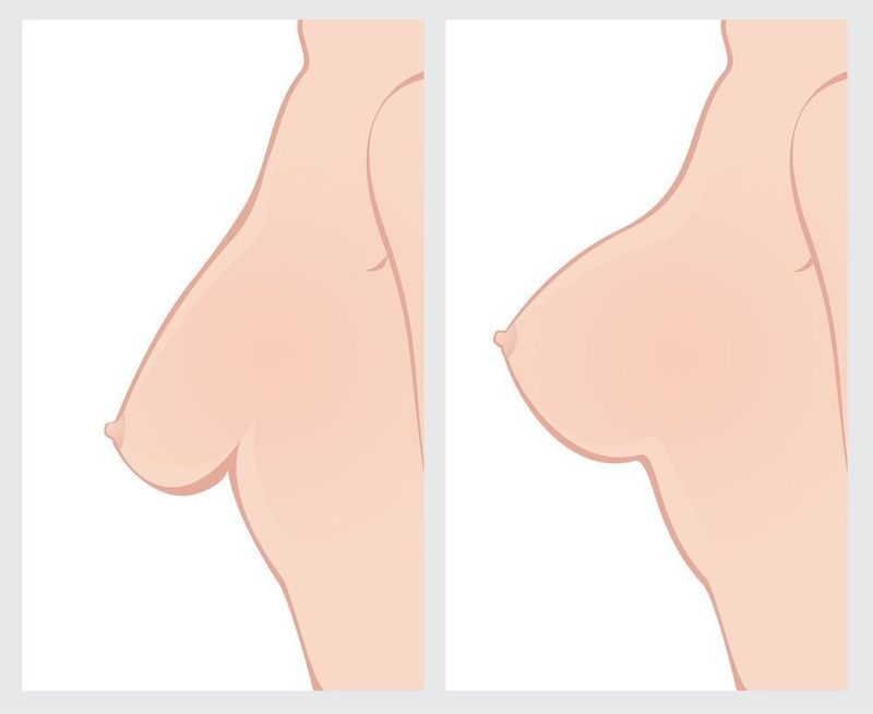 Side-by-side, illustrated comparison of a breast before and after a breast lift.