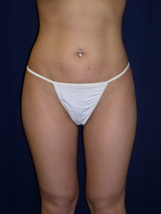 Smartlipo after photo
