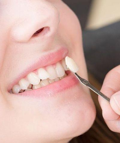 Porcelain veneer being placed on tooth