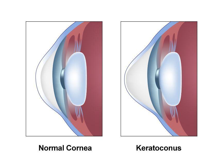keratoconus versus healthy eye illustration