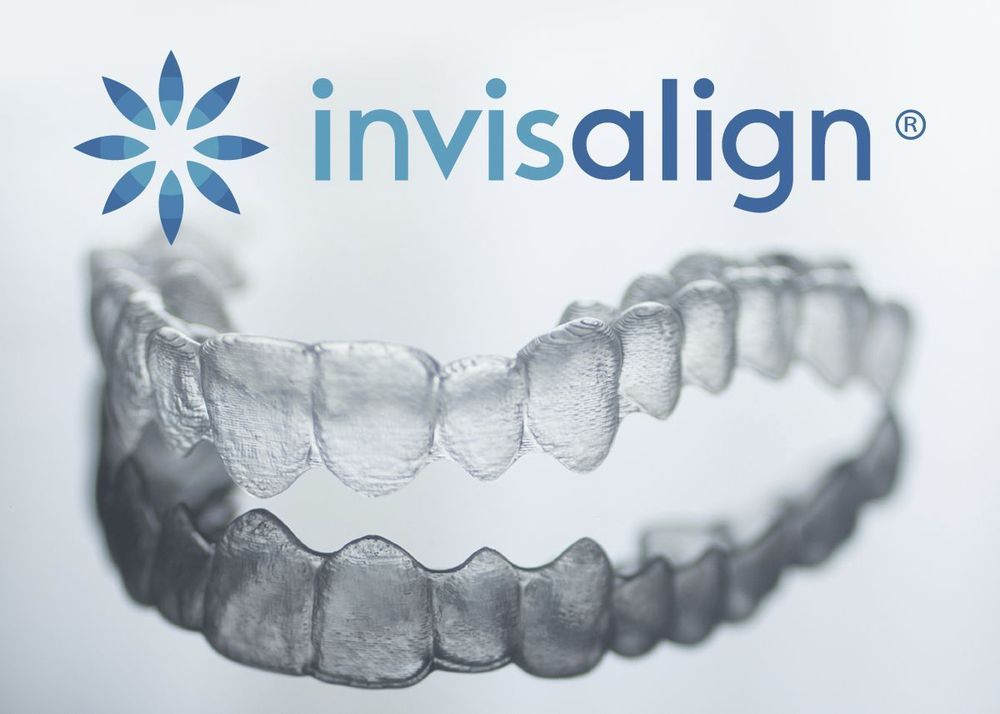 Photo of a clear Invisalign aligner tray