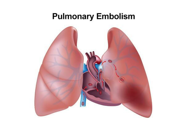 Illustration of a pulmonary embolism
