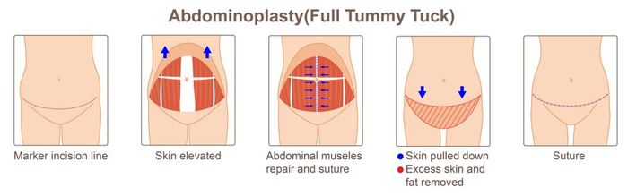 Stages of abdominoplasty diagram