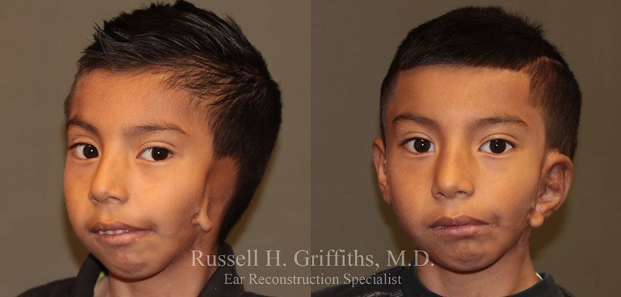 Before and After: One-stage microtia ear reconstruction surgery on a boy with hemifacial microsomia 3/4 view.