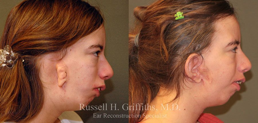 Before and After: One-stage microtia ear reconstruction surgery on teenager with hemifacial microsomia goldenhars syndrome