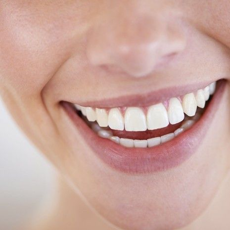Overlap image of a woman smiling and healthy teeth.