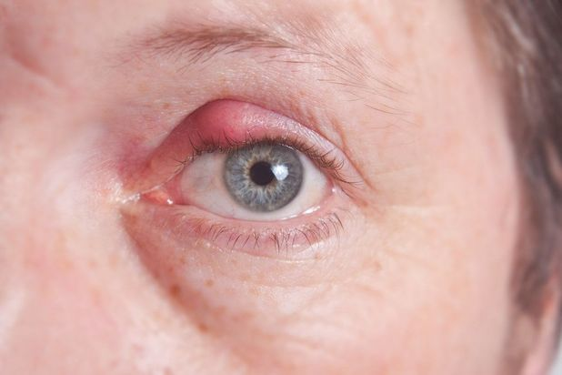 Image of patient with blepharitis