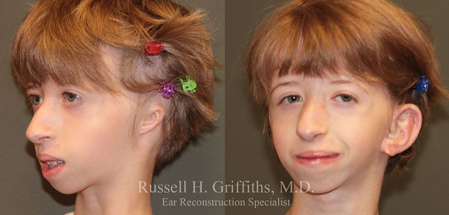 Before and After:  One Stage Microtia Ear Reconstruction Surgery with Canalplasty for bilateral microtia atresia set 2 of 4.