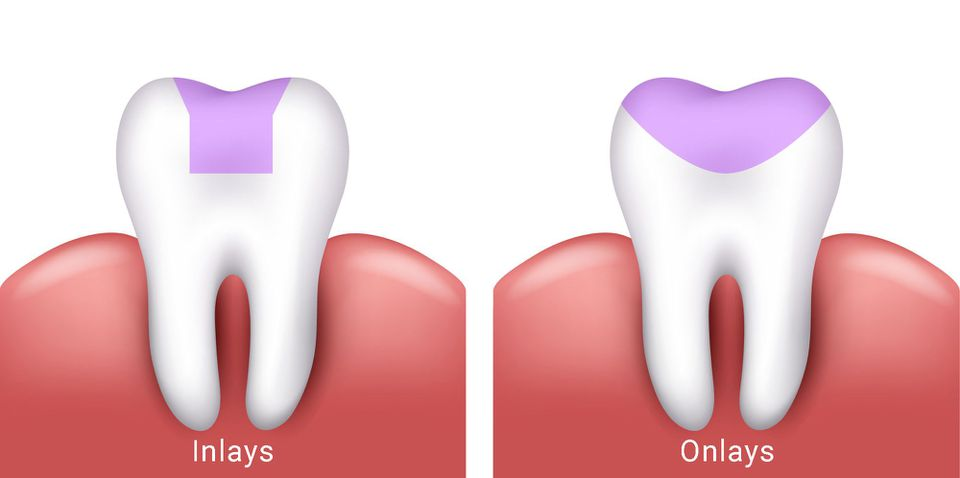 Image of dental inlays and onlays