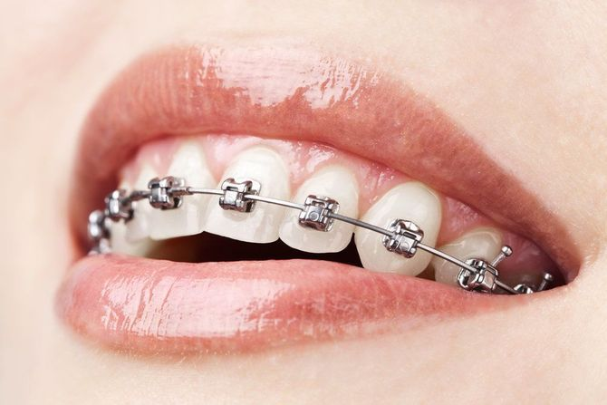 Photo of a smile with traditional metal braces