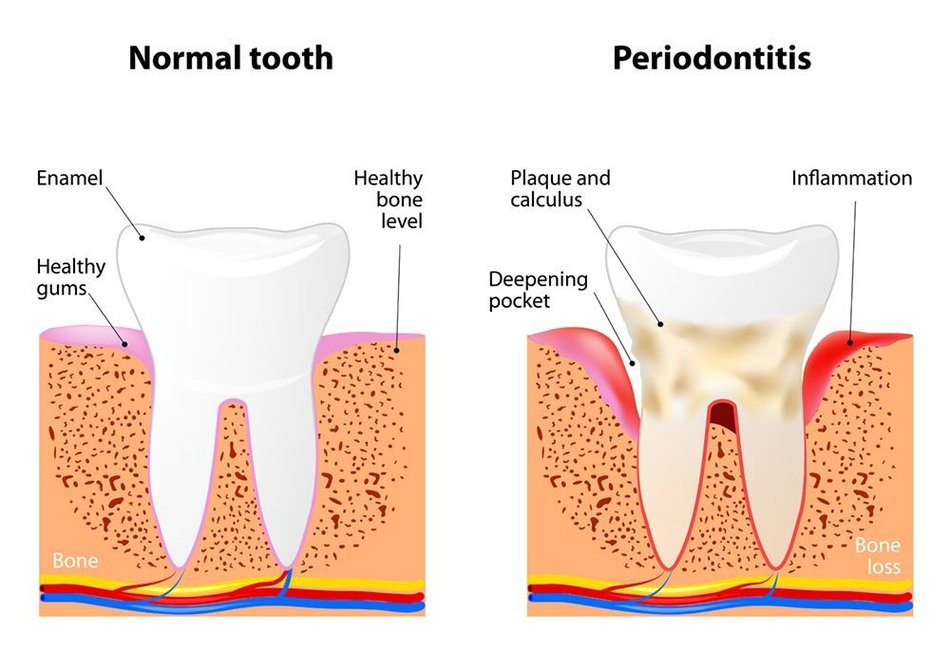 Illustration of a healthy tooth and gums and one suffering from periodontitis