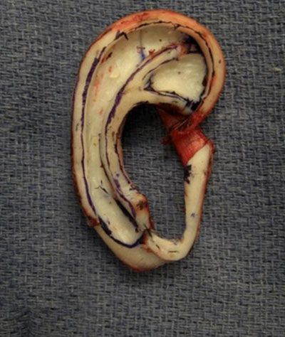 Patient's ear undergoing rib cartilage ear reconstruction.