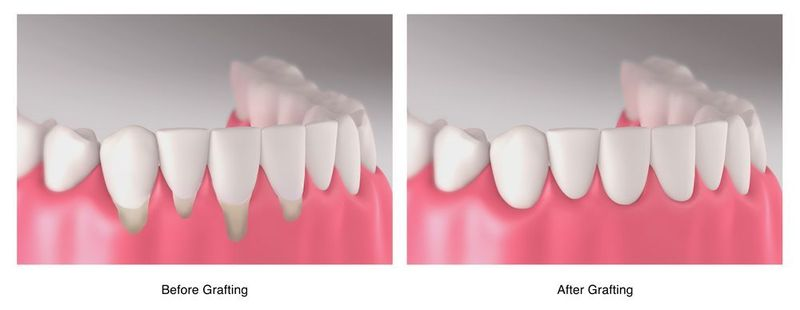 Side by side illustration of before and after gum grafting
