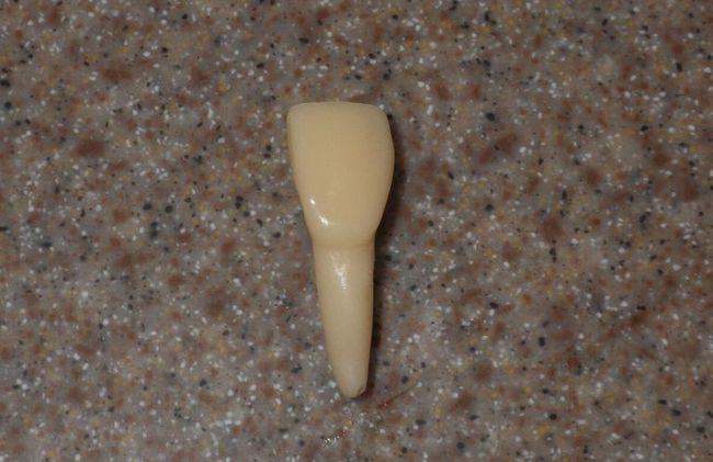 an incisor