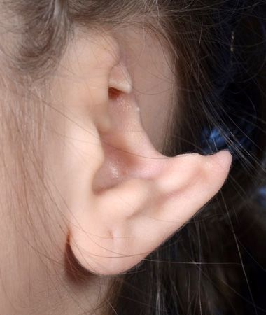 Patient's ear requiring post-traumatic ear reconstruction.