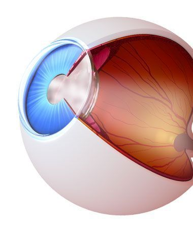Cataracts illustration