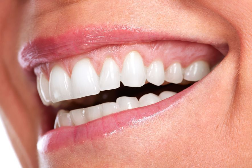 Close up of woman's extremely bright white teeth