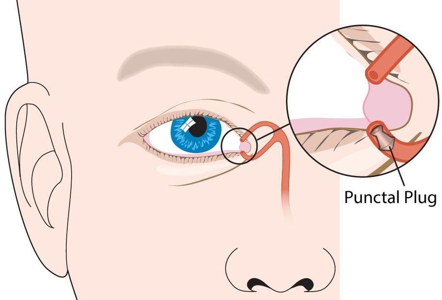 Illustration of punctal plug