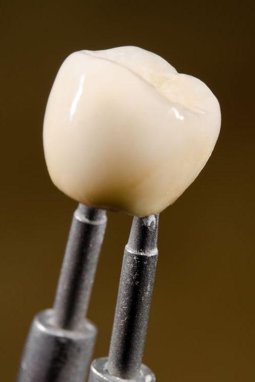 image of dental crown