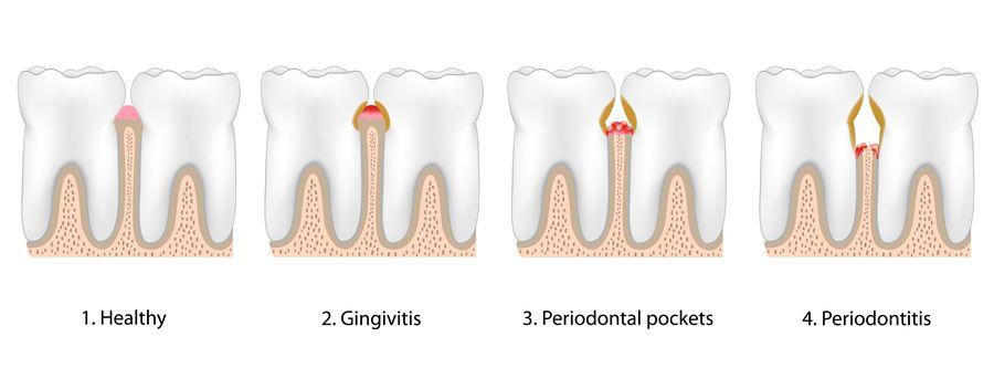 Images showing how gum disease progresses