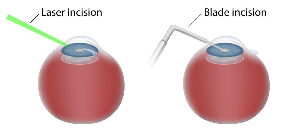 Laser incision v. blade incision