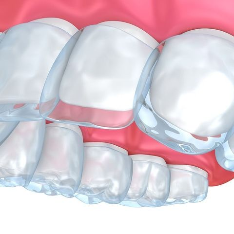 Illustration of how an aligner fits over the teeth