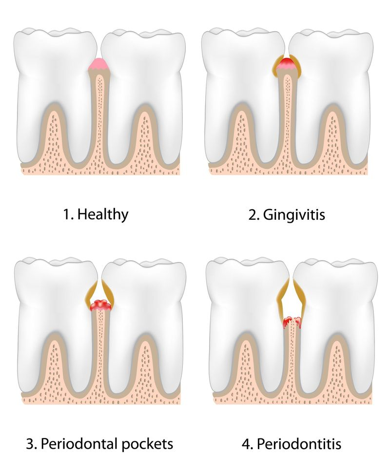 Illustration demonstrating progression of periodontal disease and decay.