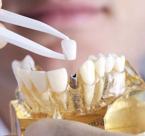 Model of jaw and implant-supported crown