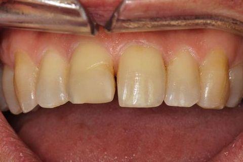 Teeth before dental bonding