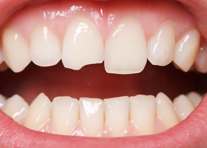 Close-up photo of chipped teeth